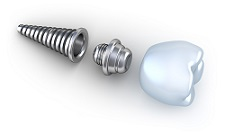 dental implants broken arrow, ok